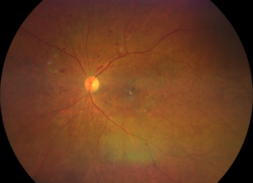 clarus 500 widefield blot hemorrhages and flame hemorrhage diabetic retinopathy