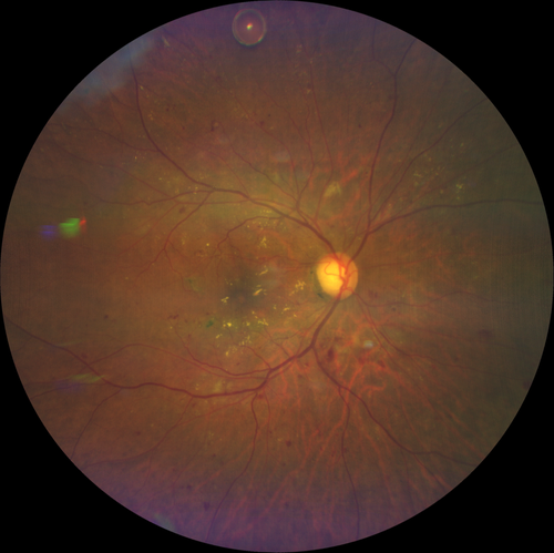 CLARUS 500 widefield imaging of a patient with moderate NPDR and DME referred for cataract surgery. A bolus of intravitreal anti-VEGF can be seen floating superiorly. The patient was pretreated with anti-VEGF by his retinal specialist before being referre