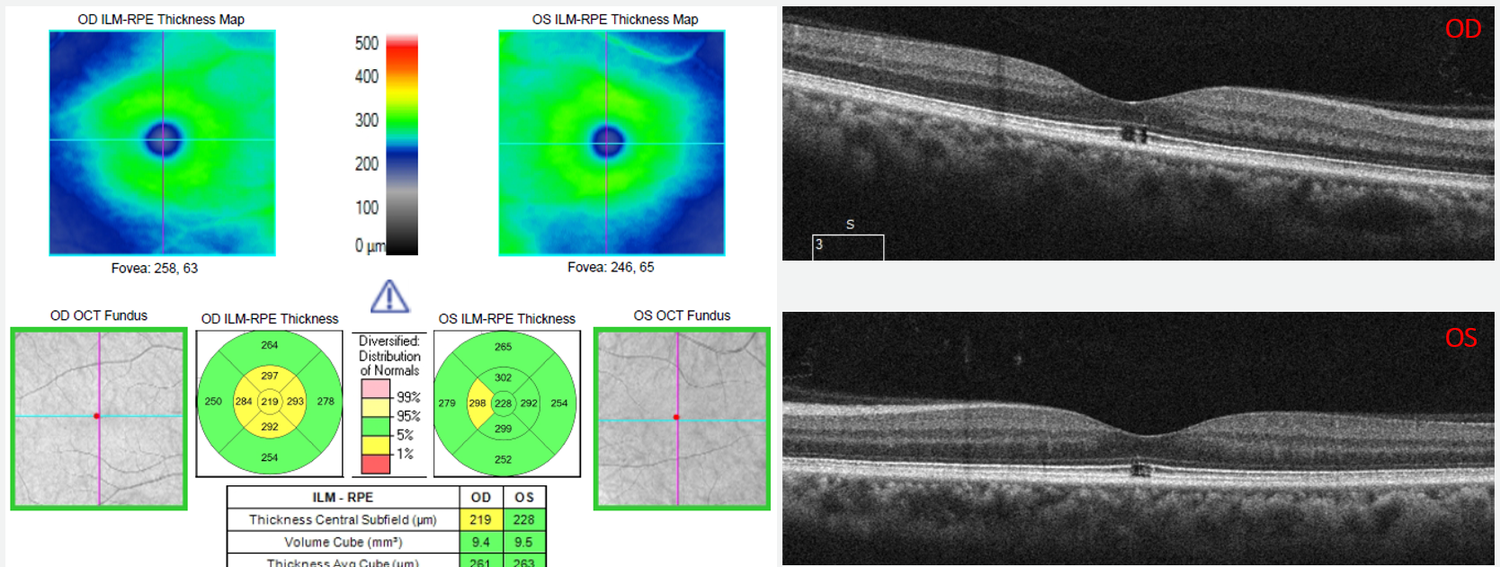 This case highlights the importance of always reviewing the B-scans in relation to the macular thickness maps on the diagnostic report.  The B-scan image clearly shows outer retinal loss without traction