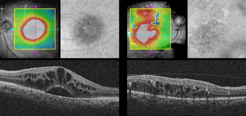 Figure 10: On the left, CIRRUS OCT imaging of pseudophakic cystoid macular edema. On the right, CIRRUS OCT imaging of diabetic macular edema.