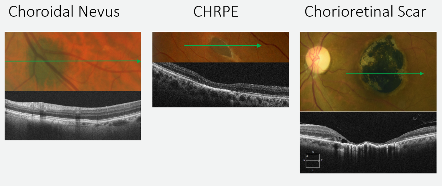 On the left, choroidal thinning can be seen anterior to a flat nevus, both of which are posterior to the RPE. The middle image shows outer retinal thinning with an underlying thickened RPE, representing  a CHRPE.  In the image on the right, a chorioretinal scar has caused significant inner and outer retinal atrophy and a distorted RPE