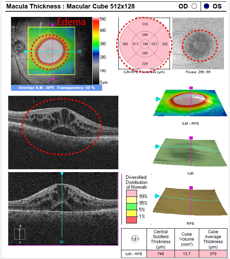 The pataloid shape of cystoid macular edema is well illustrated in the enface image