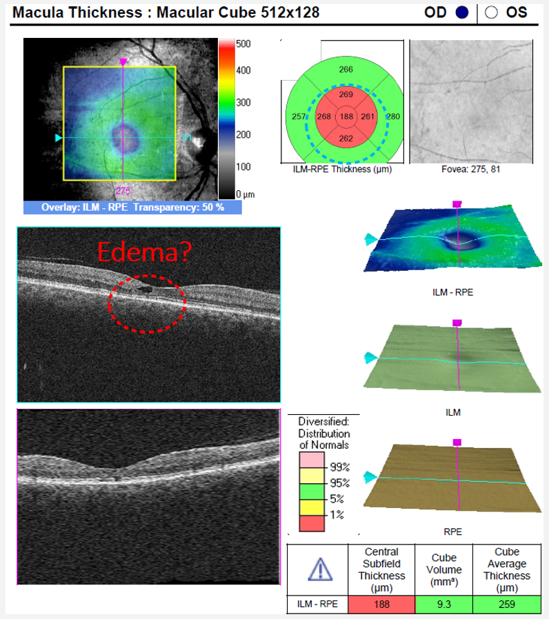 Note the central retinal thinning on the topographic and thickness maps of this macular cube OCT.  This thinning is due to atrophy of the retina, indicating MacTel
