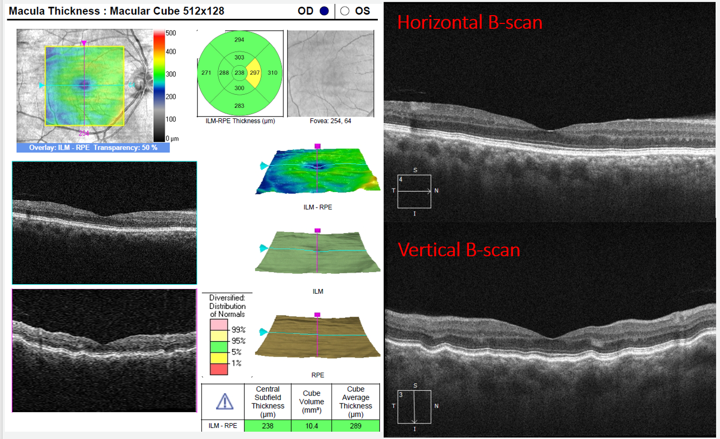In this case of choroidal folds, minimal RPE disruption is seen on the horizontal scan while the vertical scan makes the choroidal and retinal effects apparent