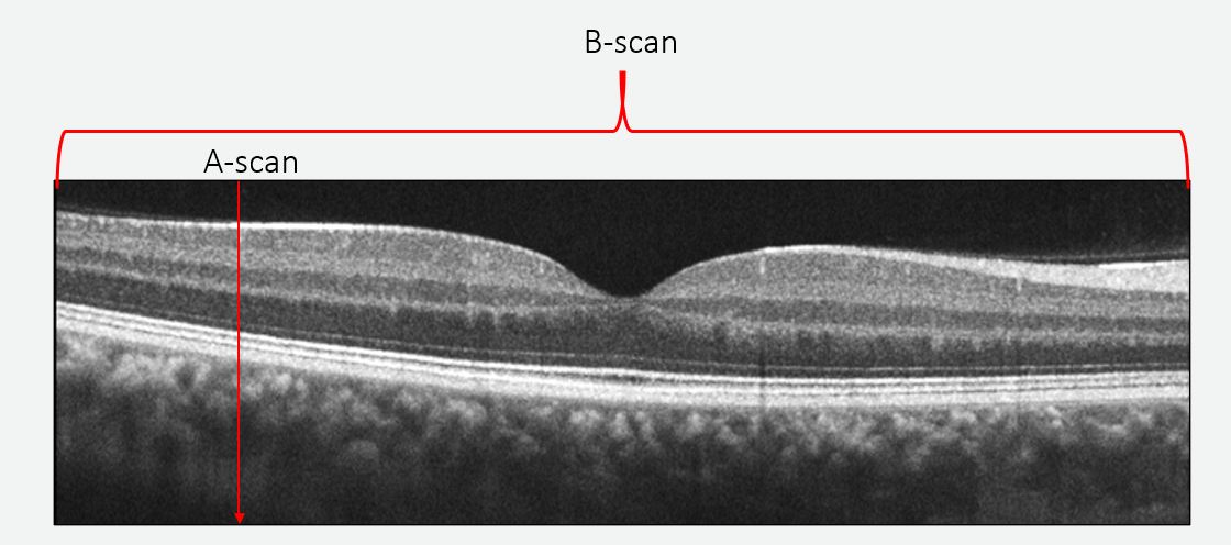 "A B-scan is made up of many adjacent A-scans to create a ""slice"" of the retina"