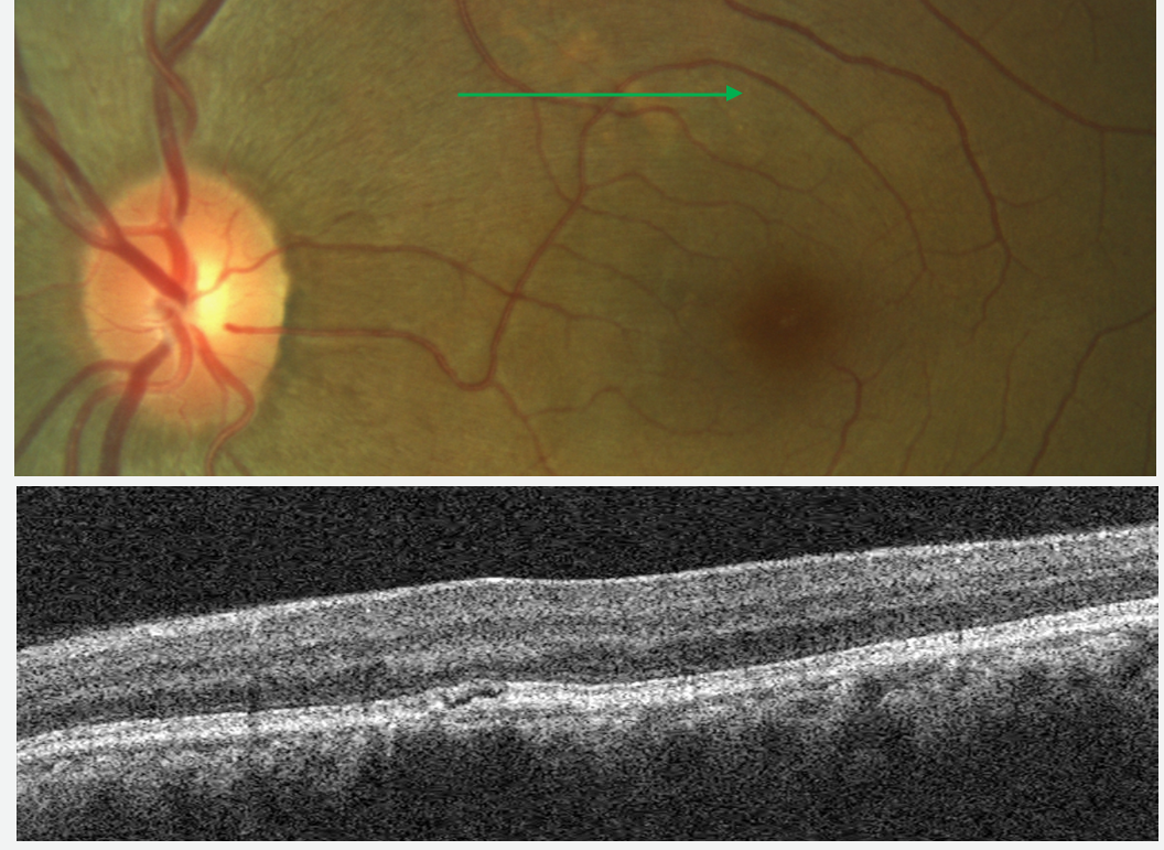 Pachychoroid Pigment Epitheliopathy:  The fundus photo shows a light colored lesion that may be confused for drusen in AMD, while the B-scan image resembles the appearance of retinal edema