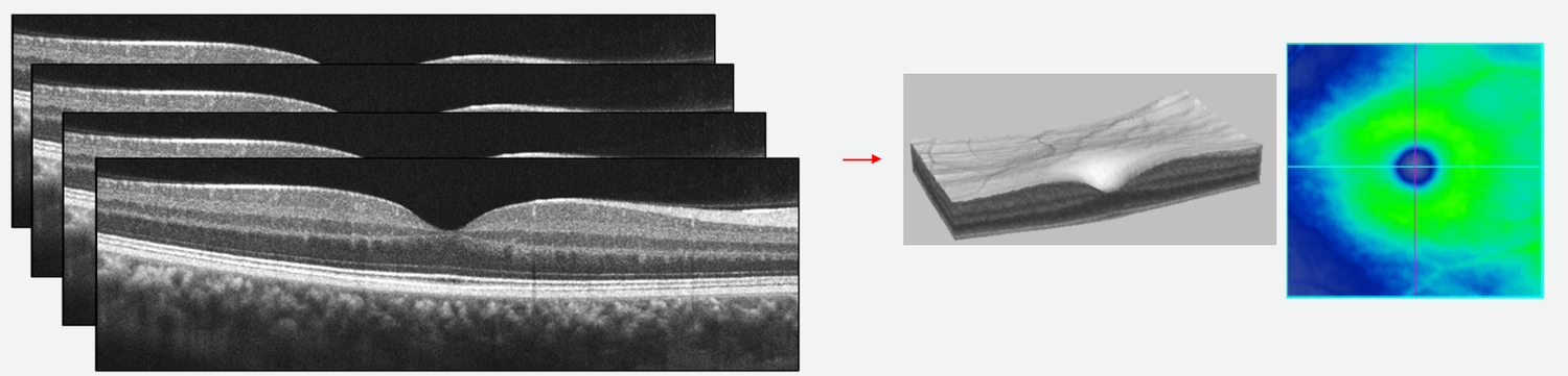 A cube scan is made up of many adjacent B-scans to create a 3D representation of the retina