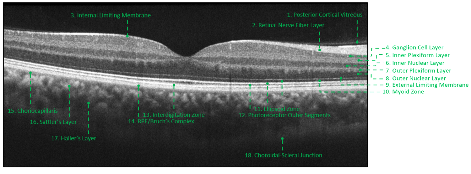 In this healthy macula, each layer of the retina can be distinctly identified due to differences in their reflectivities