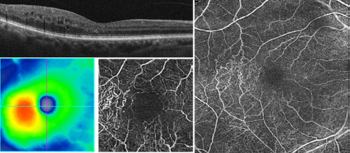 CIRRUS OCT scans of retinal thickening temporal to the fovea. CIRRUS Angioplex reveals vascular remodeling consistent with a compensated branch retinal vein occlusion