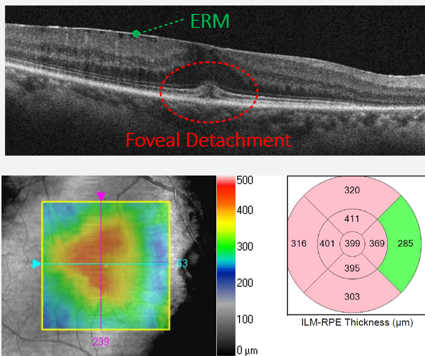 The traction of this progressed ERM has caused the fovea to begin to detach.  Thickening may be seen on both the retinal map and the B-scan image