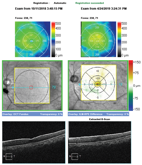 8 OCThe Zeiss Cirrus OCT is capable of providing a progression or change analysis map to highlight changes in the OCT over time.  Central thickening can be seen where the ERM is growing and causing increased traction on the retina.  In such cases, retinal consult and surgical intervention may be warranted to minimize vision loss.  If a progression map is available, it is important to ensure the scans are registered, meaning they can be accurately compared from point to point.  This allows easy detection of increased or decreased retinal thickening, which can help guide management decisionsT retinal bootcamp.png