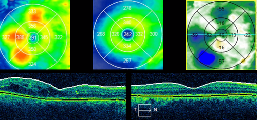 Sequential CIRRUS OCT imaging and Macular Change Analysis documents a resolution of diabetic macular edema.