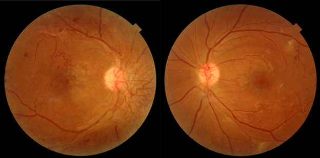 Africano-DR-color-fundus.png