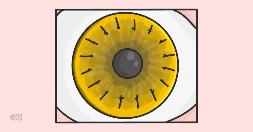 An-Ophthalmology-Resident's-Guide-to-Corneal-Transplants_Featured-Images (1).png