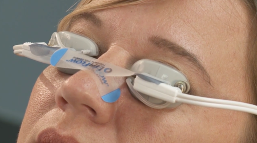 Application-of-LipiFlow®-tape.-768x428.png