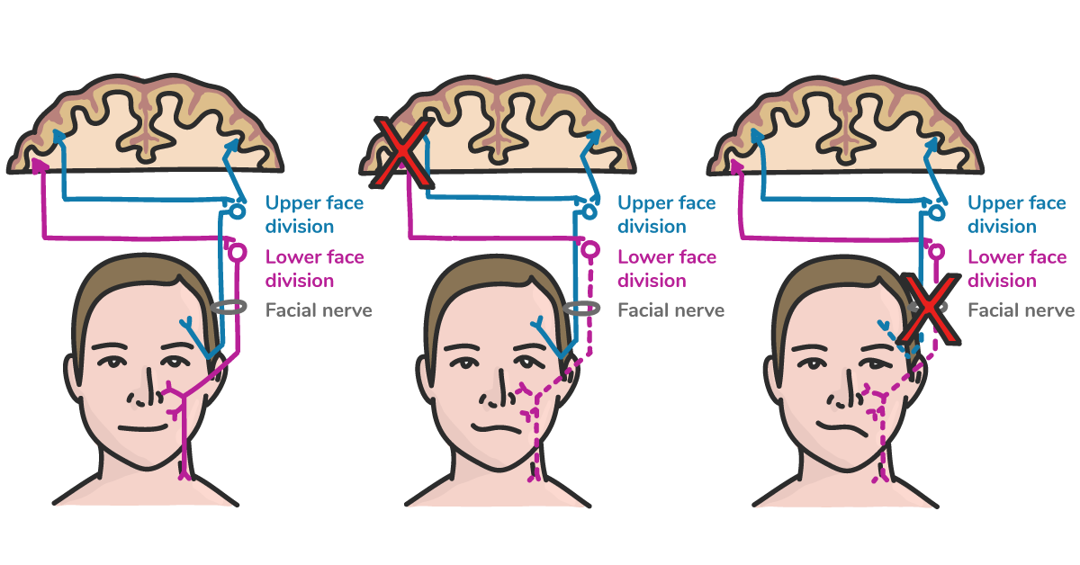 Bell's Palsy diagram