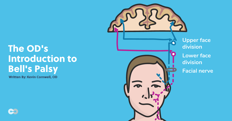 The OD's Introduction to Bell's Palsy