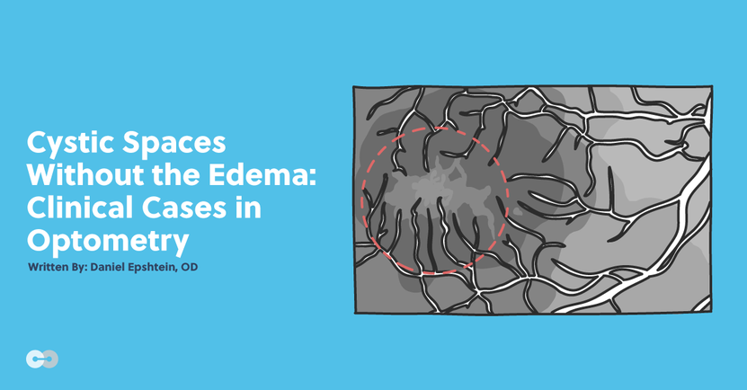 Cystic Spaces Without the Edema: Clinical Cases in Optometry