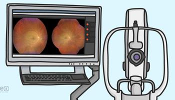 Diabetic Retinopathy—Imaging and Future Telemedicine