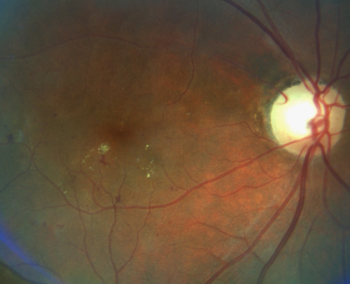 Diabetic-Retinopathy-NAION-Fundus-Photo.png