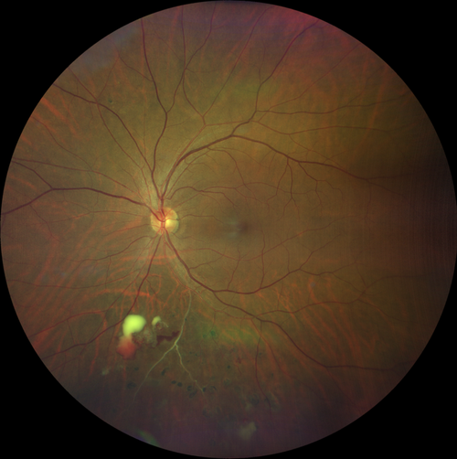 Diabetic-Retinopathy-Retinal-Artery-Occlusions.png
