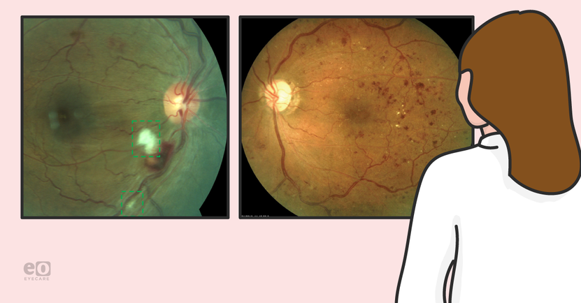 A Resident's Guide to Diabetic Retinopathy Surgical Treatment Options
