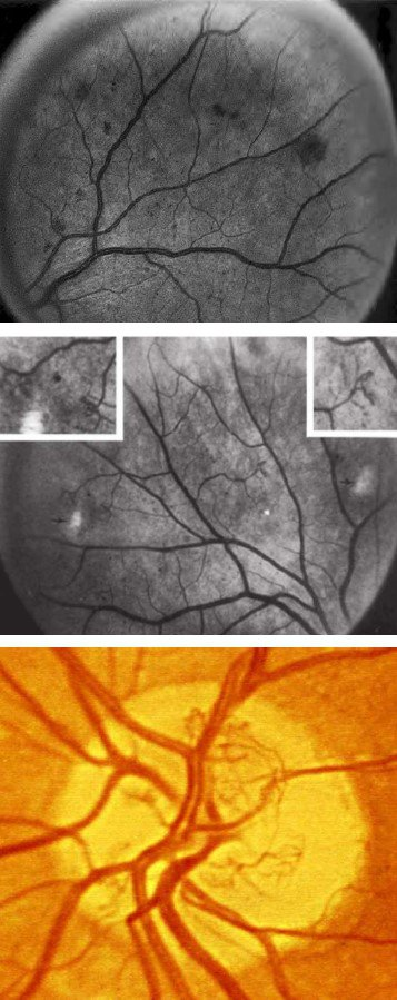FIGURE 2: Early Treatment of Diabetic Retinopathy (ETDRS) standard photos 2A (top), 8A (middle) and 10a (bottom).