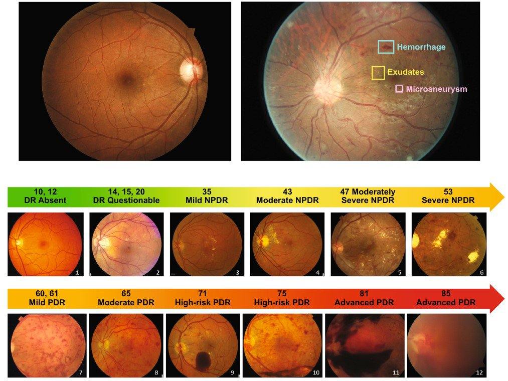 FIGURE 3: Photographic depiction of the abbreviated summary of the Early Treatment of Diabetic Retinopathy (ETDRS) Final Scale of Diabetic Retinopathy Severity. (NPDR, non-proliferative diabetic retinopathy; PDR, proliferative diabetic.)