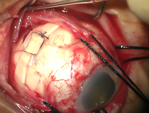 FIGURE 3 scleral buckle vortex vein.png