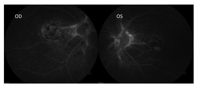 Fluorescein angiography (FA) demonstrated a densely packed pattern of hypo- and hyperfluorescence in the macula OD > OS