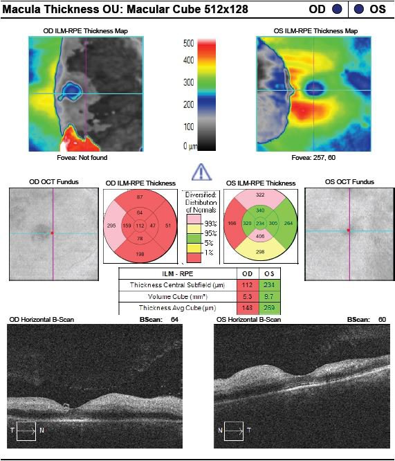 Figure 3. Optical coherence tomography (OCT) of the macula of both eyes two days after patient's loss of vision demonstrates significant photoreceptor loss, significant decrease in reflectivity of the outer retinal layer, and an increased reflectivity and thickness of the inner retina in both eyes.