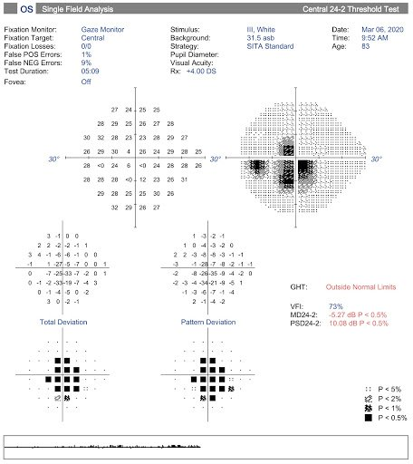 Figure 4- Single Field Analysis, 24-2.jpg