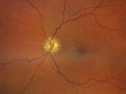 Figure 6- A new retinal image from the book- Optic disc drusen.jpg