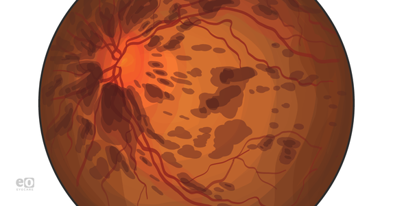 What Ophthalmology Residents Should Know About Flame Hemorrhages
