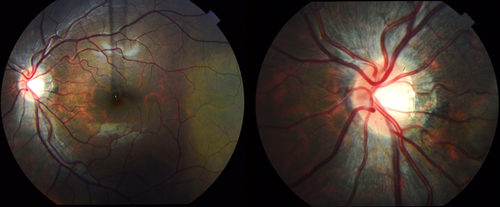 Fundus Photography Topcon Mydriatic Camera image Left 50 degree Fovea Right 35 degree optic nerve
