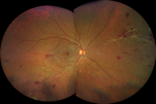 Fundus Photography Clarus 500 200 degree image of patient with vasculitis and anterior uveitis