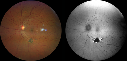Fundus photography Left image true color 100 image of chorioretinal scar Right image FAF reveals hypo-autofluorescence