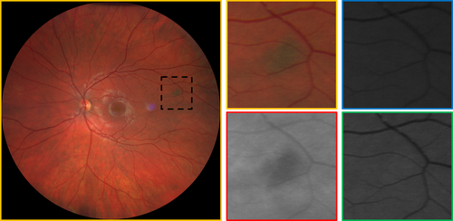 Fundus photography Left image true color widefield image of choroidal nevus Right images magnified views in true color, red channel, blue channel, and green channel