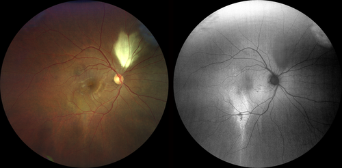 Fundus photography Left image true color of patient with resolved CSCR Right image FAF of patient with resolved CSCR