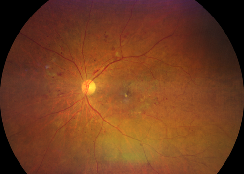 Fundus photography central and midperipheral hemorrhaging in moderate diabetic retinopathy