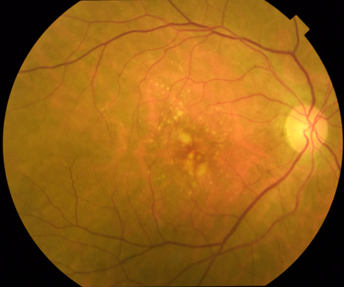 Standard color fundus photography reveals large, medium, and small drusen in this patient with intermediate AMD