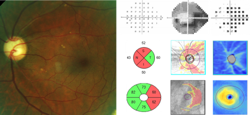 Glaucomatous-Field-Loss-with-RNFL-and-GCA-Analysis.png
