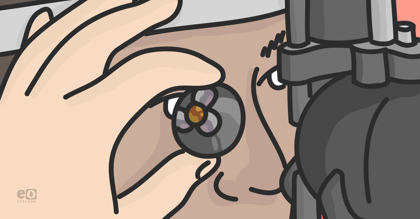 Gonioscopy-Tips_Featured-Images.png