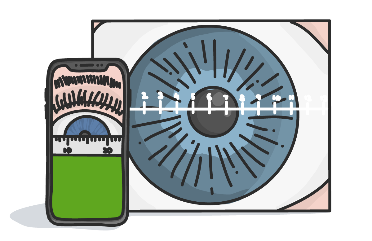 HVID measuring pupillary distance synergeyes.png