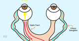 Here's the Easiest Way to Test for an Afferent Pupillary Defect