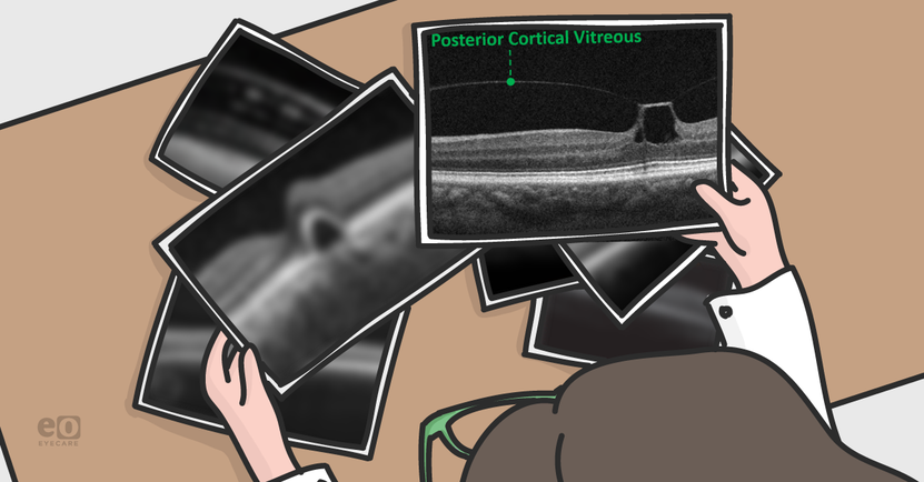 How to Spot Vitreomacular Traction