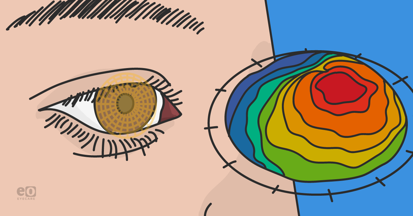 My-Clinical-Experience-with-Topography-Guided-LASIK_Featured-Images.png