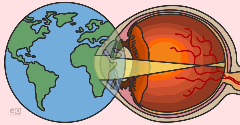 Myopia Awareness and the Evolving Myopigenic Landscape