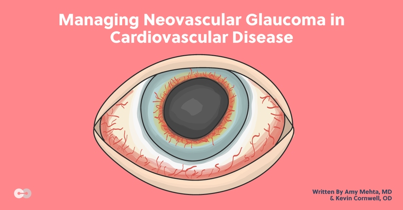 Managing Neovascular Glaucoma in Cardiovascular Disease