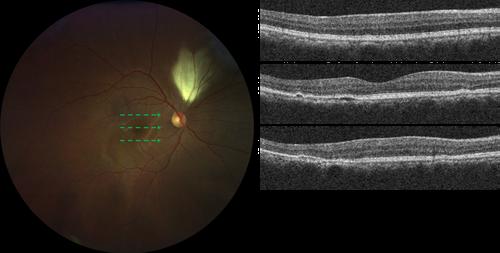 OCT-B-Scan-of-Retinal-Loci.png